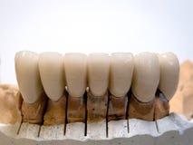 Металл керамический стоковые изображения rf
