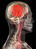 мигрень головной боли Стоковая Фотография