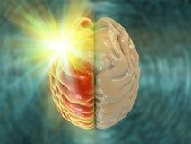 Мигрень, hemicrania, медицинская концепция иллюстрация штока