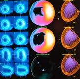 Миокардиальный дефект   ядерная медицина Стоковые Изображения RF