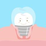 Милые зубные имплантаты шаржа Стоковая Фотография RF