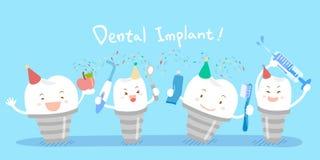 Милые зубные имплантаты шаржа Стоковое Изображение