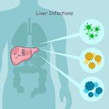 Милые инфекции печени шаржа Стоковая Фотография RF
