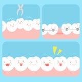 Милый счастливый зуб шаржа Стоковое Изображение RF