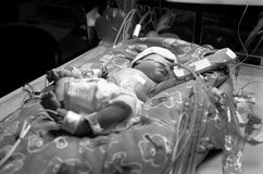 младенец преждевременный Стоковое Изображение