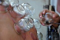 Множественная чашка вакуума медицинской придавая форму чашки терапии на человеческом теле Стоковое фото RF