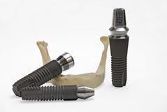 модели зубоврачебных implants Стоковые Фотографии RF