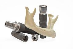 модели зубоврачебных implants Стоковые Изображения RF