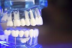 Модель зубоврачебных зубов клиническая Стоковое Изображение RF