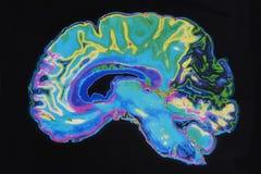 Мозг изображения MRI на черной предпосылке Стоковое фото RF