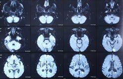 Мозг развертки CT стоковая фотография rf