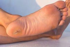 Мозоль ноги Стоковая Фотография RF