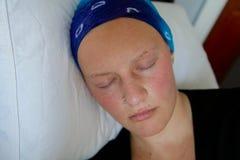 Молодой онкологический больной в головном платке спать на подушке стоковое изображение