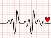монитор сердца удара Стоковые Изображения