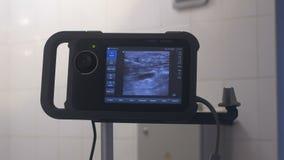 Монитор для отслеживать деятельность varicose вен сток-видео