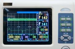 Монитор ECG Стоковое фото RF