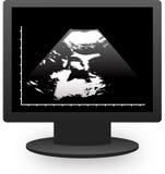 монитор echography Стоковое Изображение RF