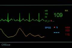 Монитор EKG в блоке ICU Стоковая Фотография RF