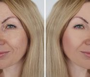 Морщинка девушки стороны перед и после процедурами по косметики коррекции стоковые изображения