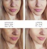 Морщинки женщины смотрят на перед и после процедурами по подъема подмолаживания косметологии стоковая фотография
