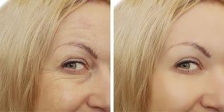 Морщинки стороны женщины before and after стоковая фотография rf