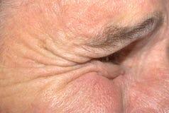 морщинки человека Стоковые Изображения RF