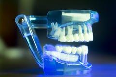 Модель зубоврачебных зубов клиническая Стоковые Фото