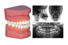 Модель зубов и cephalometric рентгеновский снимок изолированные дальше с Стоковые Изображения RF