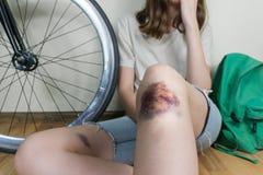 Молодая женщина в вскользь стиле улицы одевает с повреженным коленом res Стоковое Изображение