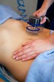 Молодая женщина в процессе на массаже вакуума клиники Стоковое фото RF