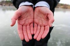 Заболевание Raynaud стоковое изображение rf