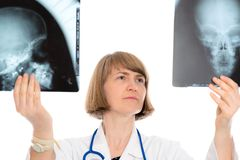 Молодой женский доктор с фотоснимком рентгеновского снимка Стоковое фото RF