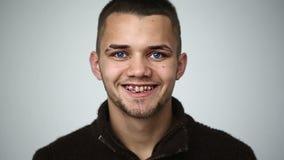 Молодой человек с голубыми глазами усмехаясь и показывая расчалки на зубах и молодом человеке winkingA с голубыми глазами усмехая акции видеоматериалы