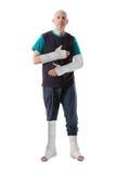 Молодой человек с сломленной лодыжкой и бросанием ноги стоковые изображения rf