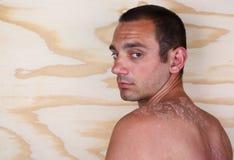 Молодой человек с sunburned Стоковые Фотографии RF