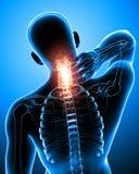 Мужская боль шеи Стоковое Фото