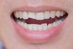Мужчина перебиваних работ ушибов зубов или зубов Травма и повреждение нерва раненого зуба стоковое изображение