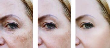 Наблюдает пигментация морщинок стороны женщины, поднимая пациента перед и после здоровьем процедур стоковая фотография rf