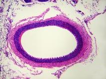 наивысшая мощность артерии Стоковые Фотографии RF