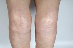 Нанесите шрам на колене старшей женщины, Стоковые Фотографии RF