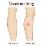 Нарыв на ноге Стоковые Изображения RF