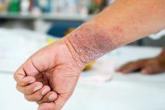 Настоящие моменты Eczema на руке стоковые изображения rf