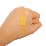 На руке человека кулак склеил медицинское объявление гипсолита скорой помощи гипсолита стоковые изображения rf