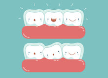 Незримые расчалки, зубоврачебный и зуб Стоковые Изображения RF
