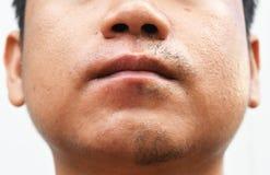 Некоторый усик после усика разведения на поверхностной молодой азиатской коже стороны человека не заботится в течение длительного Стоковое Изображение