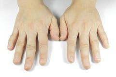 Непривлекательные руки на белой предпосылке Стоковые Изображения RF