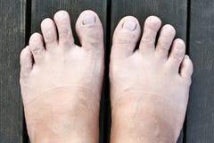 Нога и бактерии Стоковое Фото
