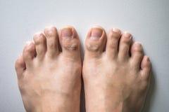 Нога и длинный ноготь toes на белой конкретной предпосылке стоковая фотография