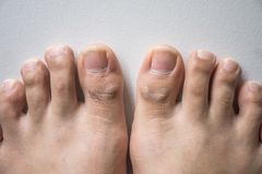 Нога и длинный ноготь toes на белой конкретной предпосылке стоковые изображения