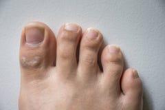 Нога и длинный ноготь toes на белой конкретной предпосылке стоковая фотография rf